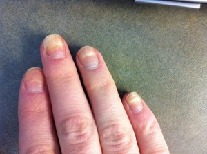 Fingernails Illness 300x2241