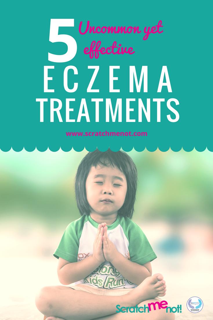 5 Uncommon Eczema Treatment