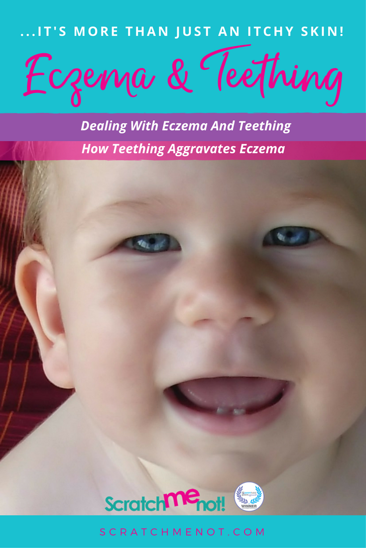 Eczema And Teething Not Just Itchy Skin