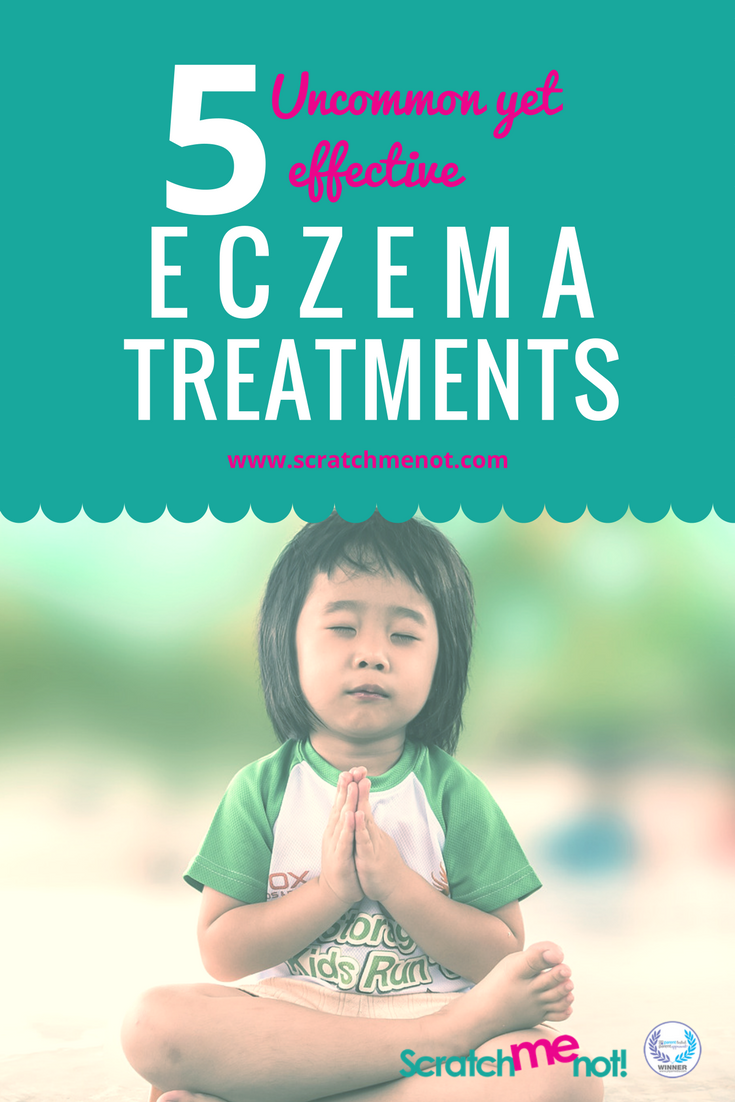 5 Uncommon Eczema Treatment